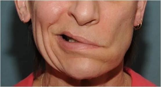 ВЕкатеринбурге суд отпустил насвободу стоматологов, испортивших лицо своему клиенту