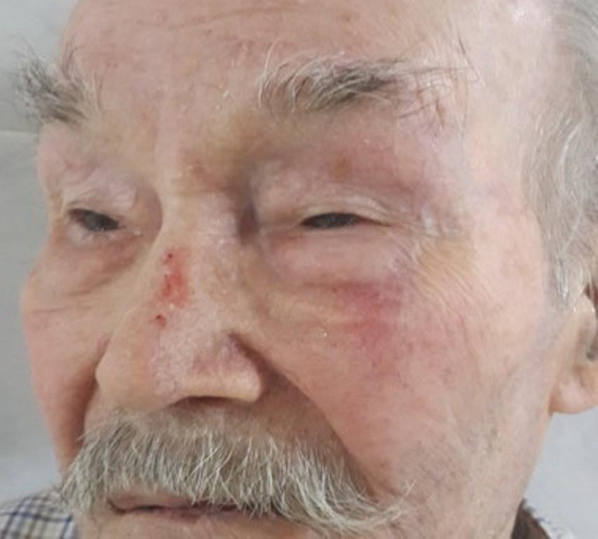 В Екатеринбурге «квартирный вопрос» и родственники отправили ветерана ВОВ на больничную койку
