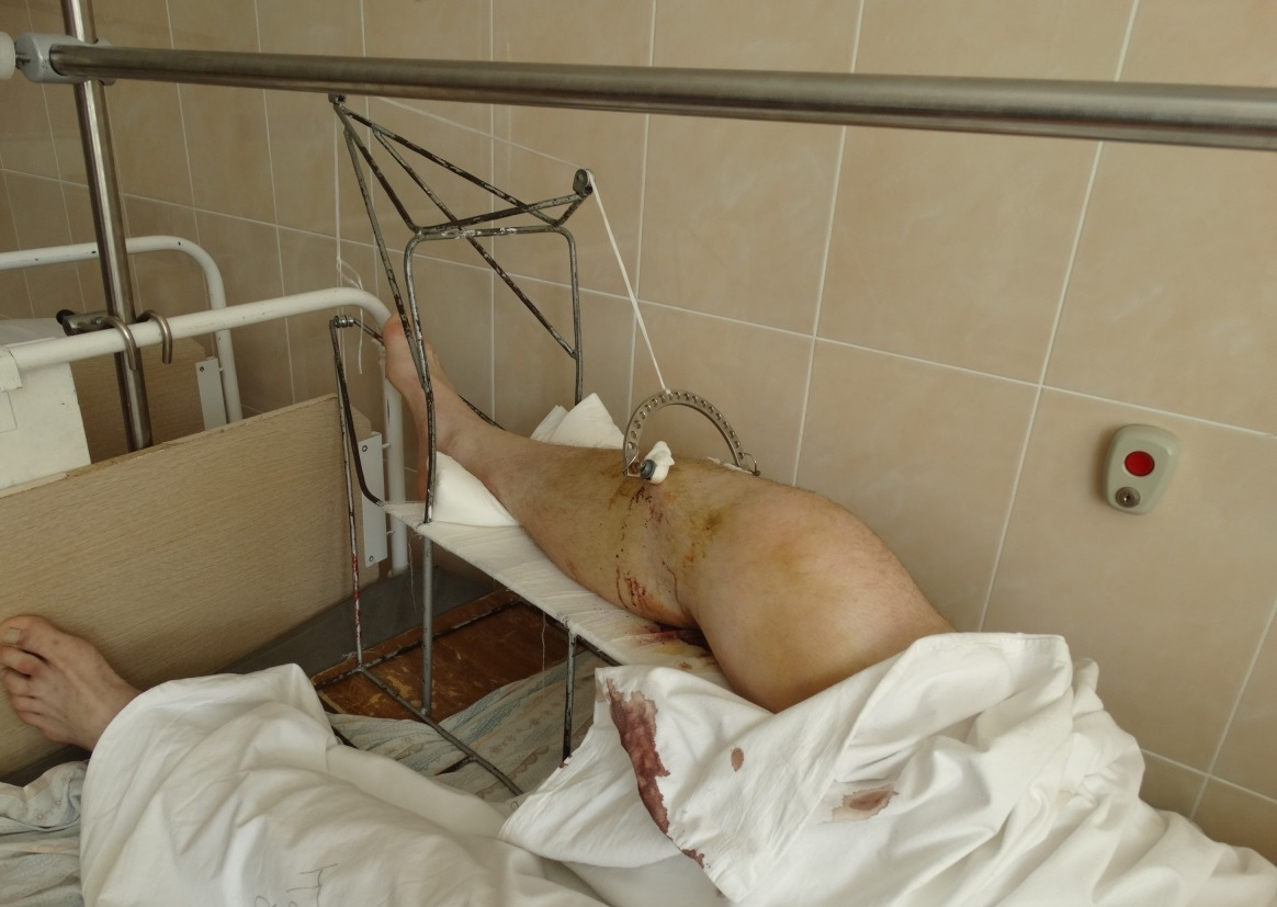 В Екатеринбурге попытка задержания велосипедиста сотрудником ГИБДД закончилась сломанной ногой
