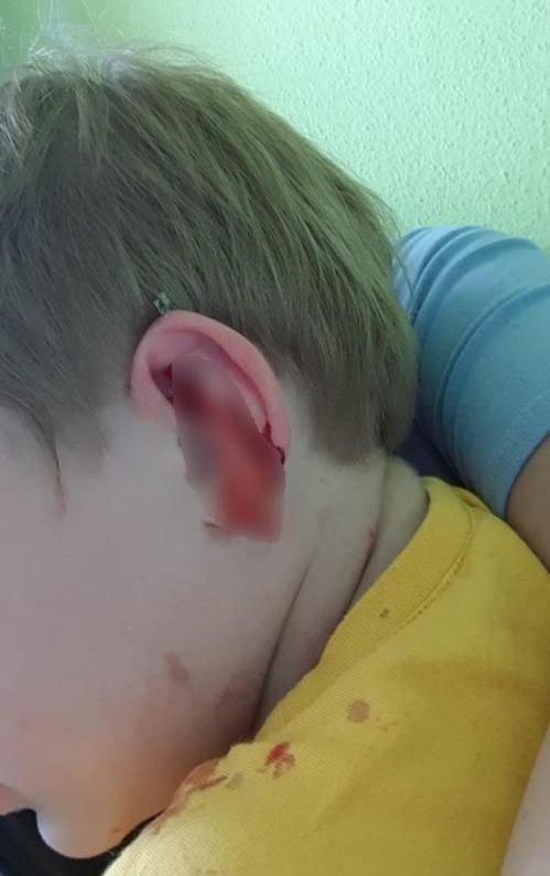 Двухлетний ребенок в Екатеринбурге во время прогулки в детсаду насквозь проткнул ушную раковину